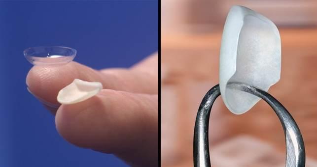 carillas dentales en coslada