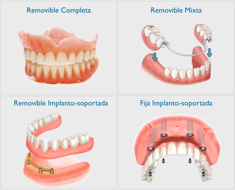 protesis dental en coslada
