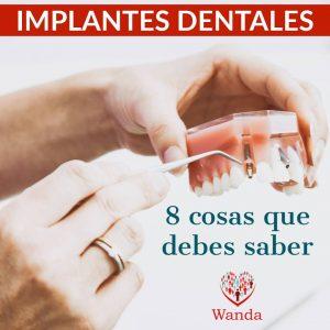 implantes en coslada