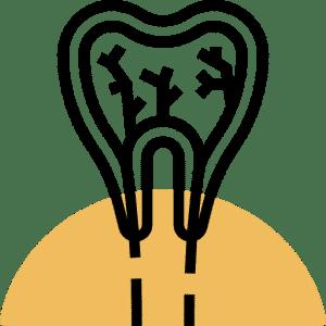 Endodoncia en coslada
